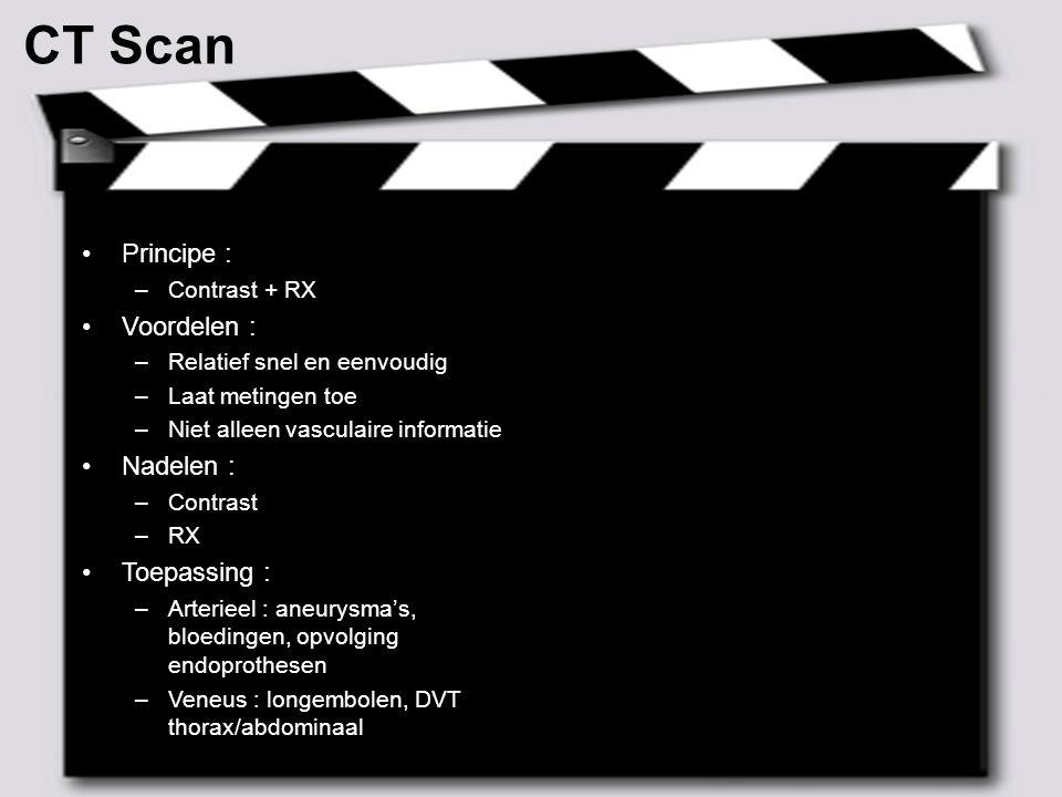 CT Scan Principe : Voordelen : Nadelen : Toepassing : Contrast + RX