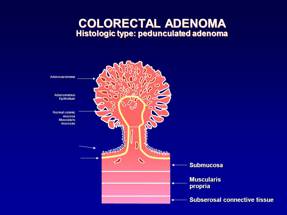 COLORECTAL ADENOMA Histologic type: pedunculated adenoma