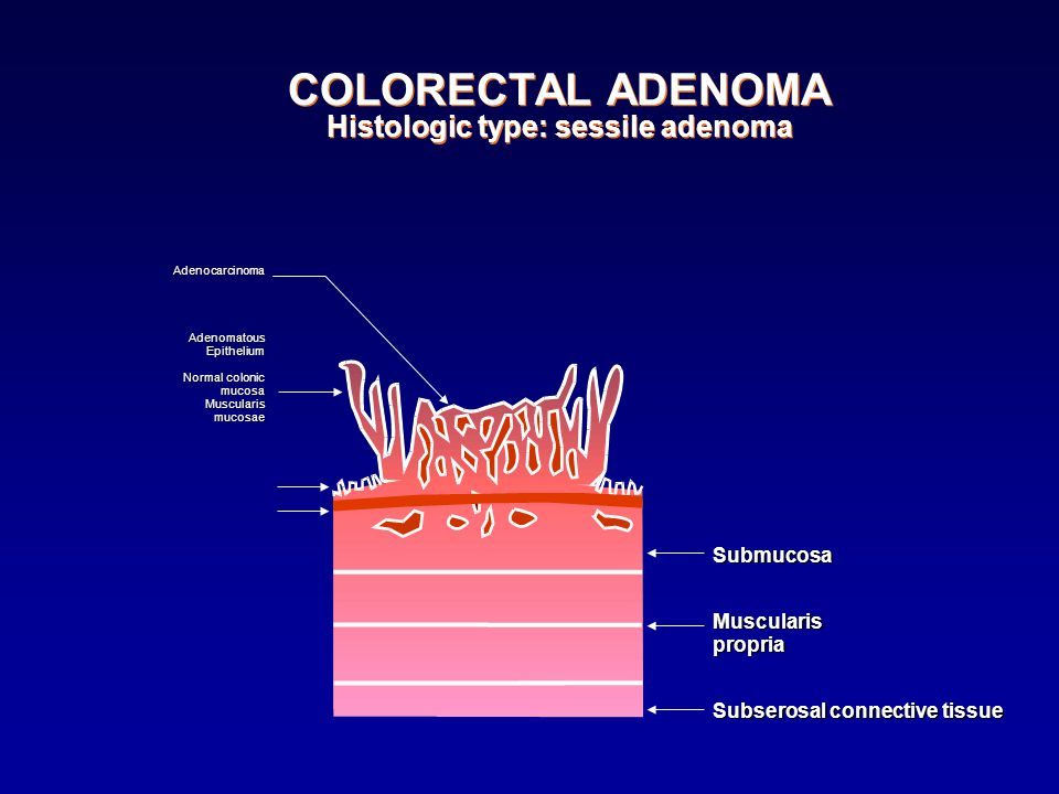 COLORECTAL ADENOMA Histologic type: sessile adenoma