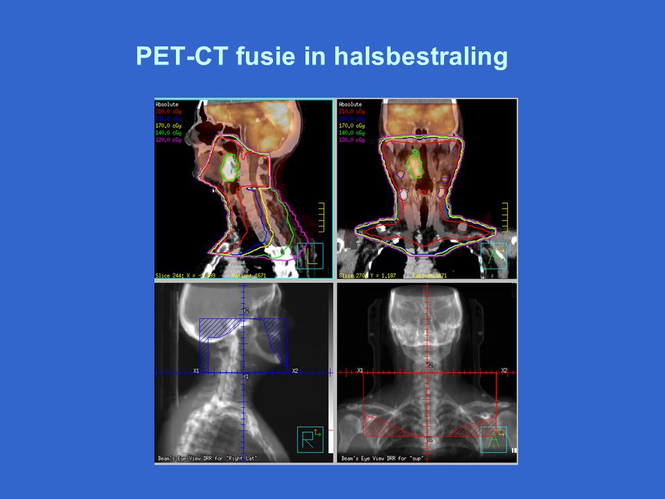 PET-CT fusie in halsbestraling