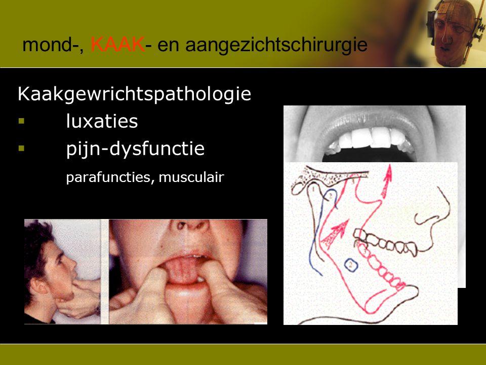 mond-, KAAK- en aangezichtschirurgie