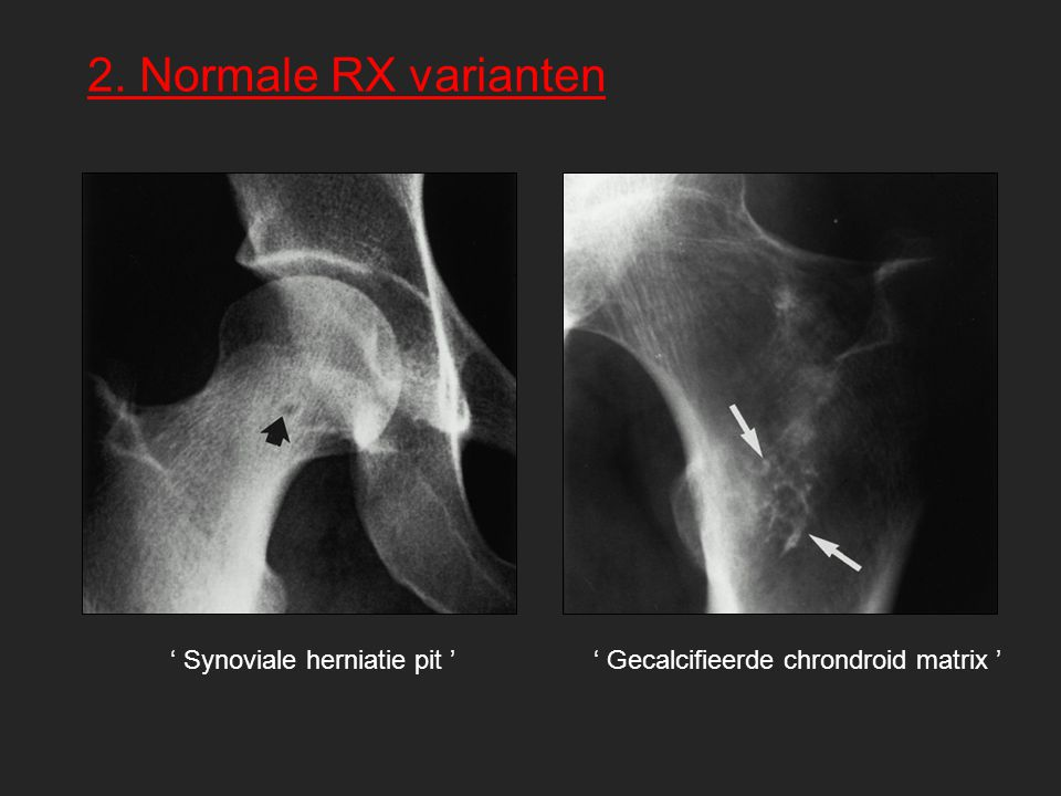 2. Normale RX varianten ' Synoviale herniatie pit '