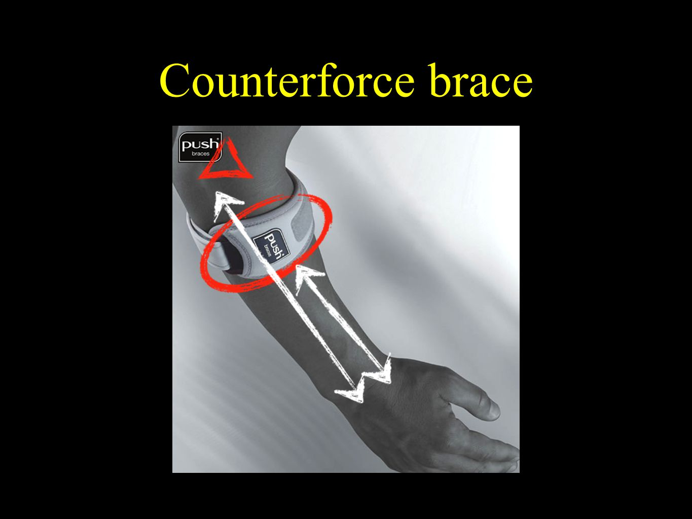 Counterforce brace