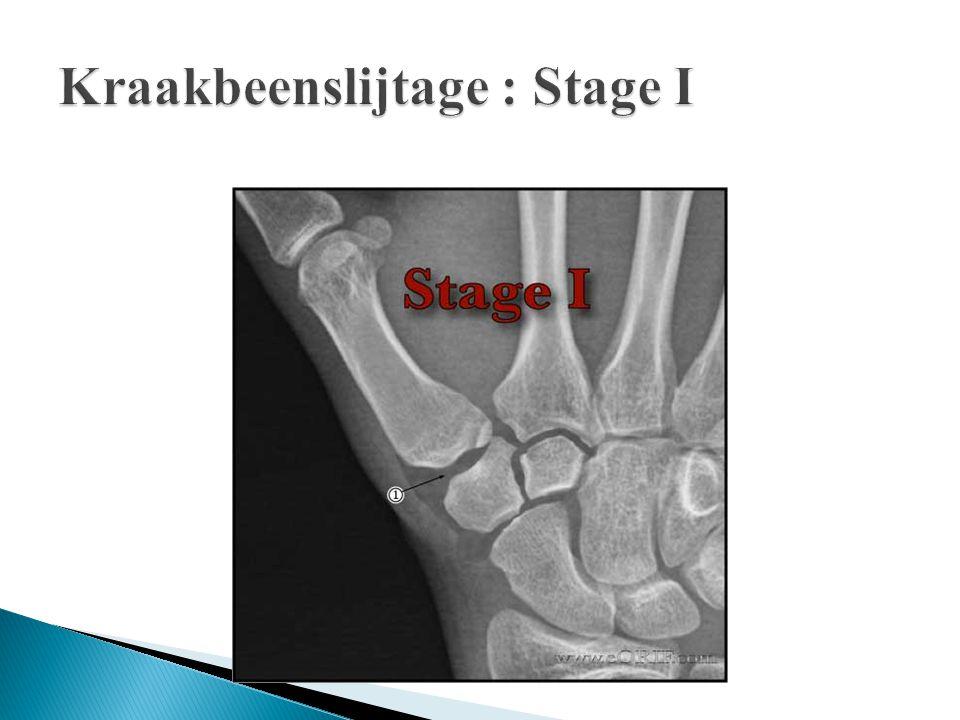 Kraakbeenslijtage : Stage I