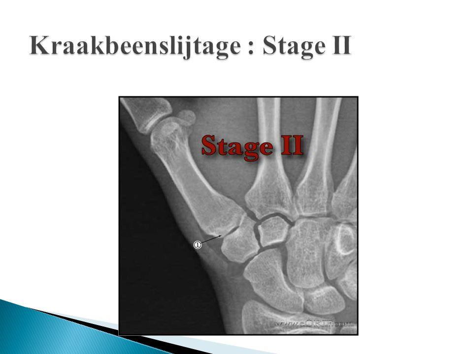 Kraakbeenslijtage : Stage II