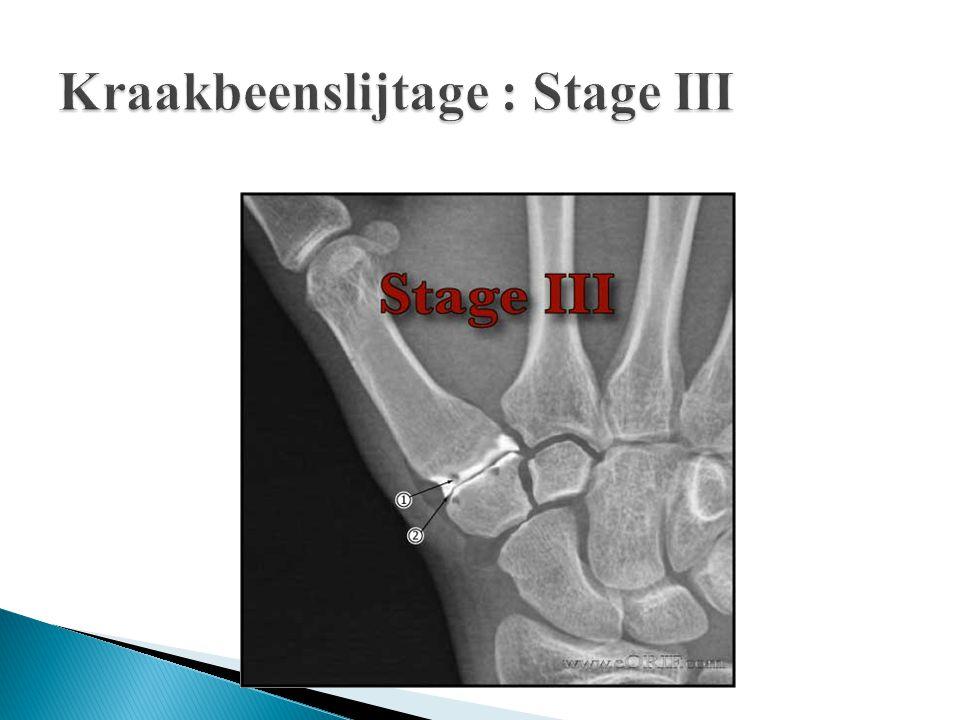 Kraakbeenslijtage : Stage III