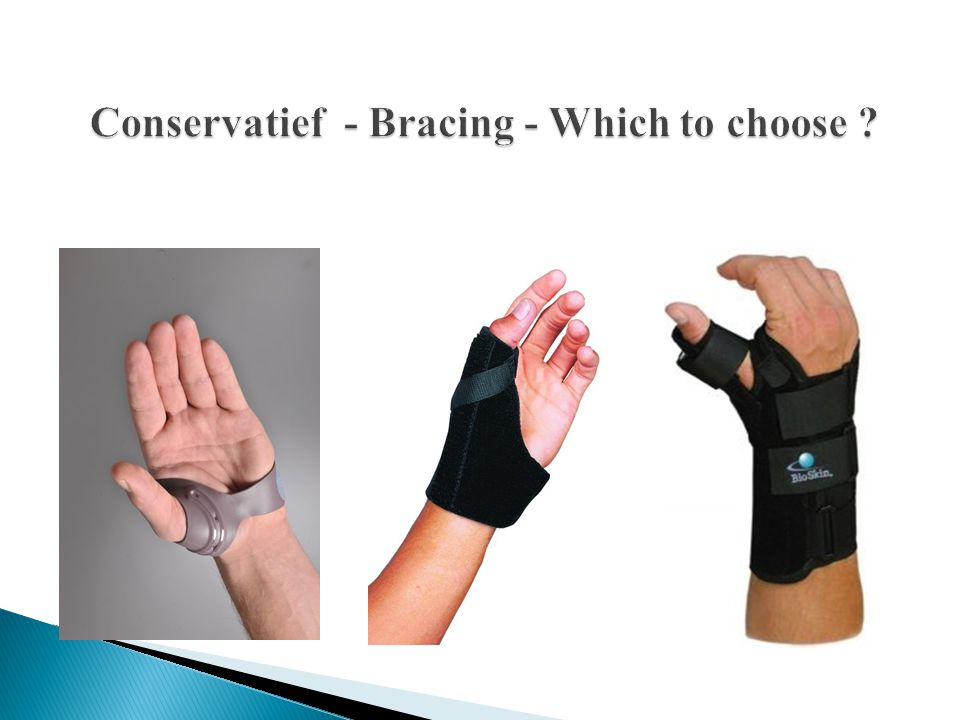 Conservatief - Bracing - Which to choose