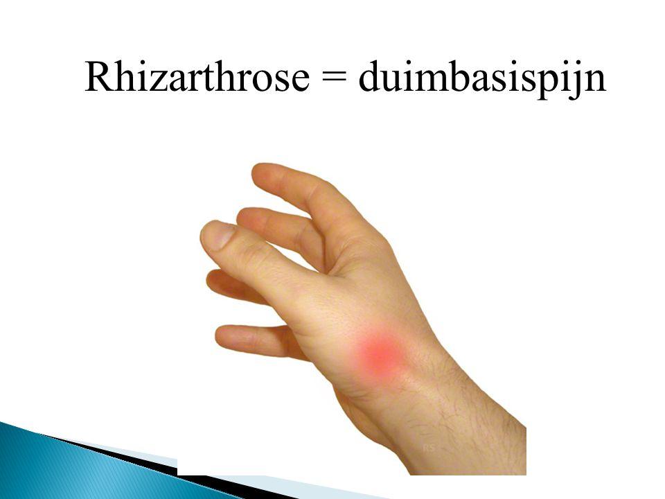 Rhizarthrose = duimbasispijn