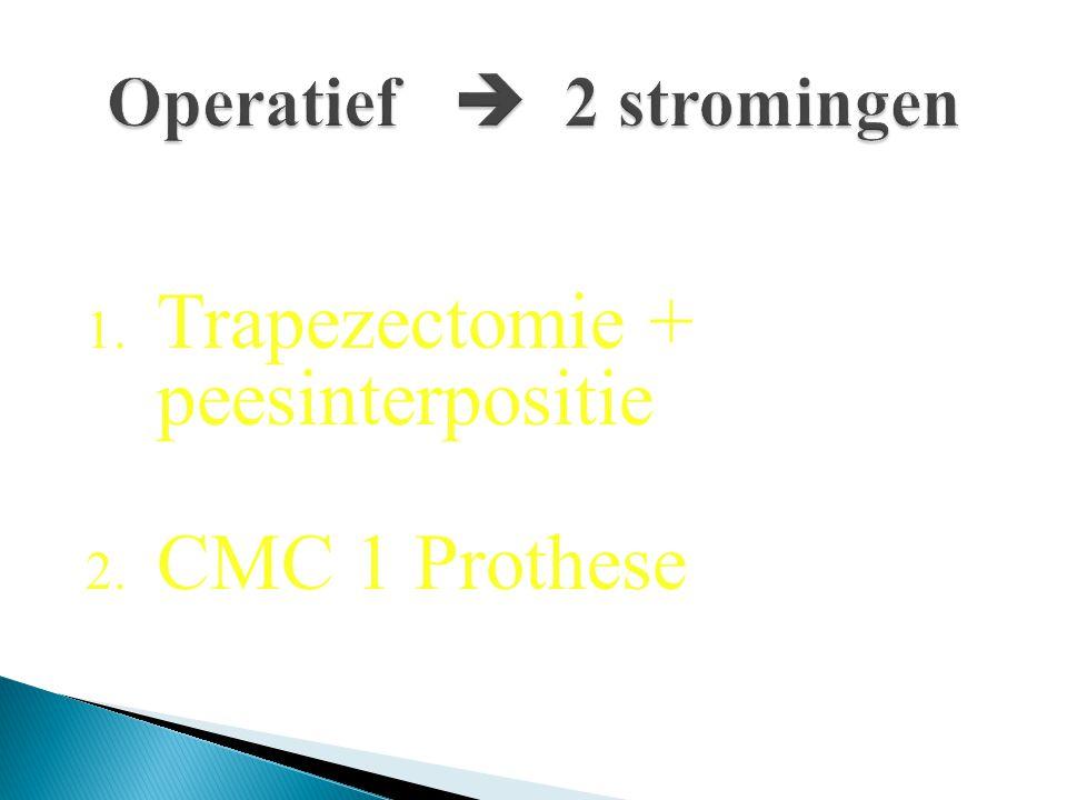 Operatief  2 stromingen