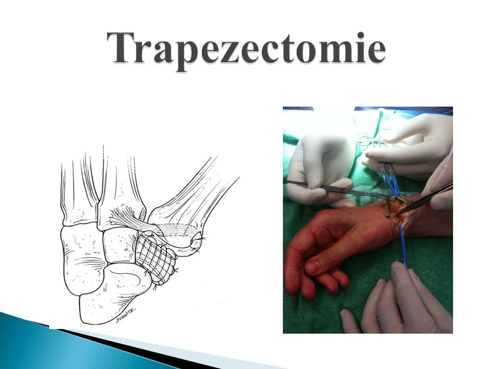 Trapezectomie