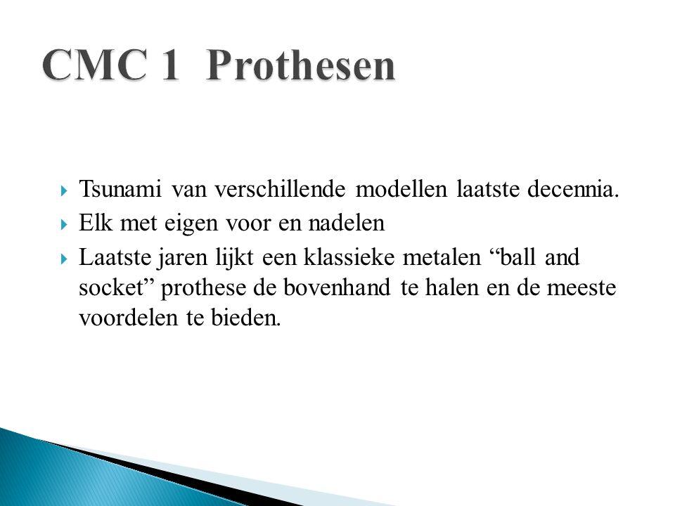 CMC 1 Prothesen Tsunami van verschillende modellen laatste decennia.