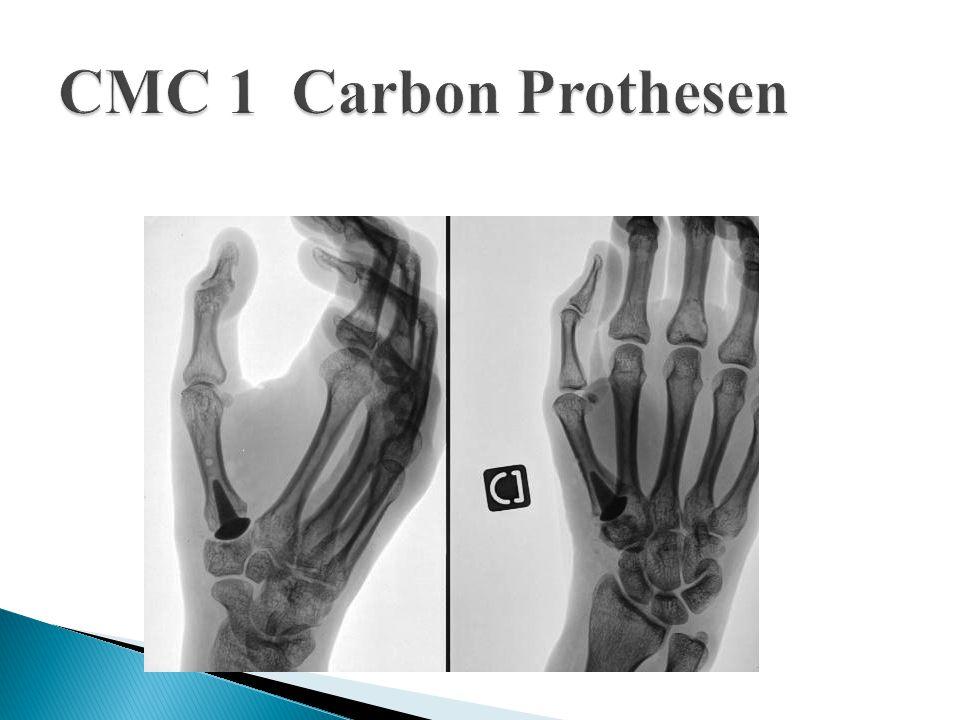 CMC 1 Carbon Prothesen