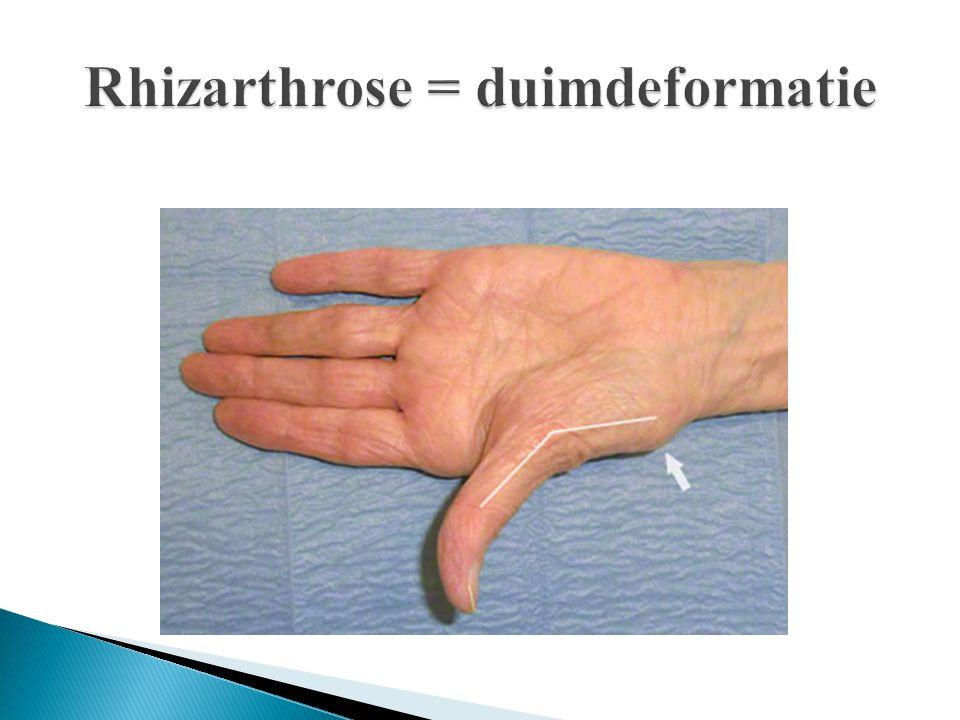 Rhizarthrose = duimdeformatie