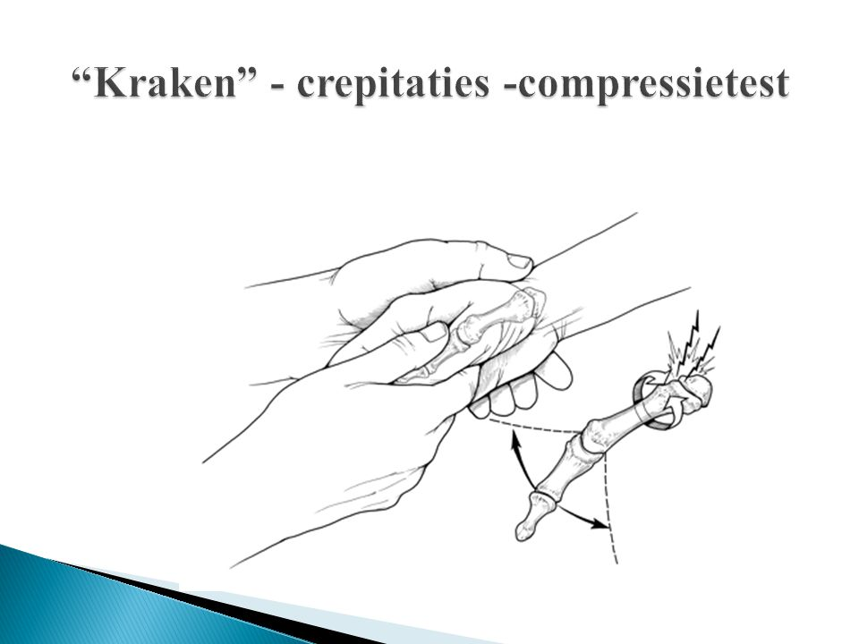Kraken - crepitaties -compressietest