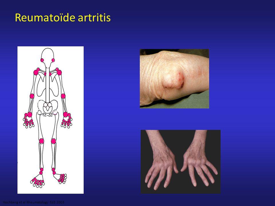 Reumatoïde artritis 14 Gewrichtsregio's: rechts en links van PIP, MCP, pols, elleboog, knie, enkel, MTP.
