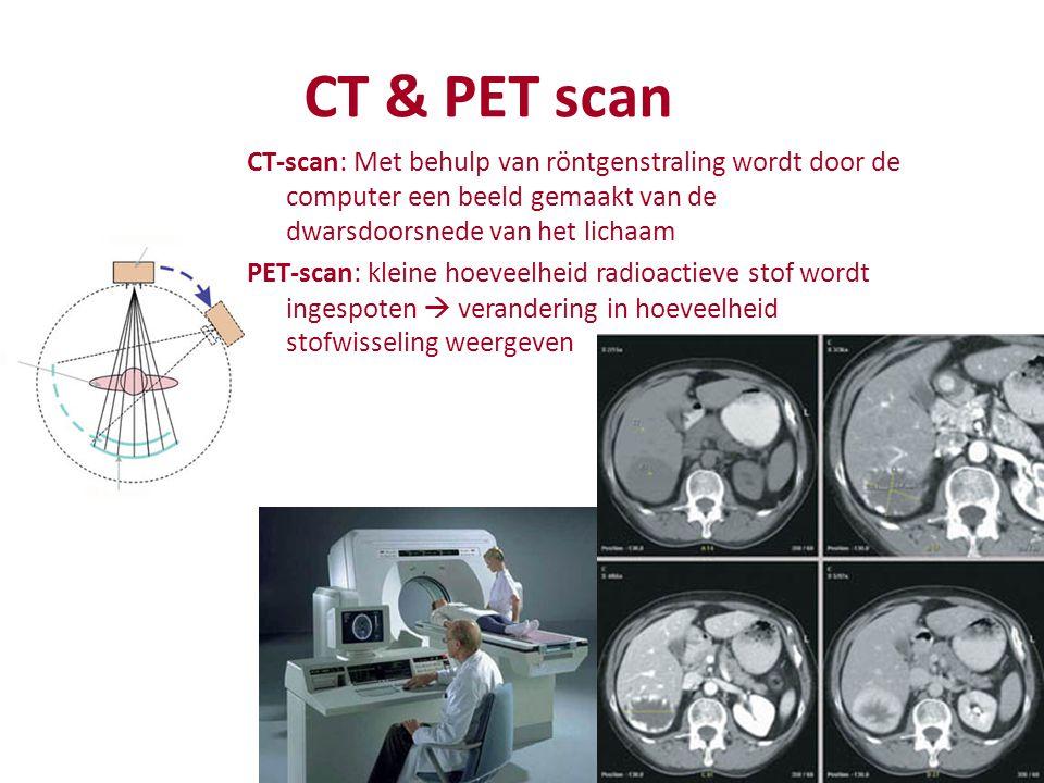 CT & PET scan CT-scan: Met behulp van röntgenstraling wordt door de computer een beeld gemaakt van de dwarsdoorsnede van het lichaam.