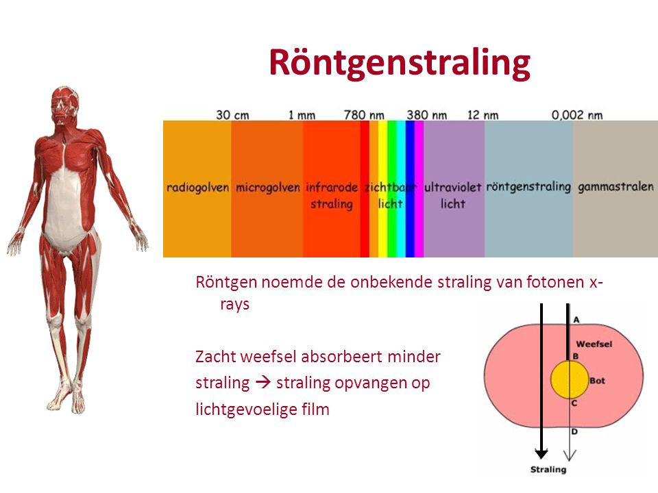 Röntgenstraling Röntgen noemde de onbekende straling van fotonen x-rays. Zacht weefsel absorbeert minder.