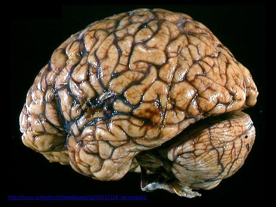 http://www.schooltv.nl/beeldbank/clip/20111128_hersenen01