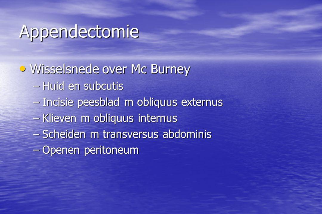 Appendectomie Wisselsnede over Mc Burney Huid en subcutis