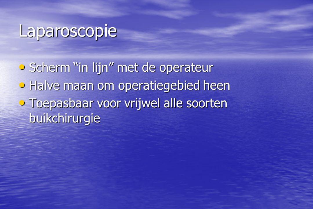 Laparoscopie Scherm in lijn met de operateur