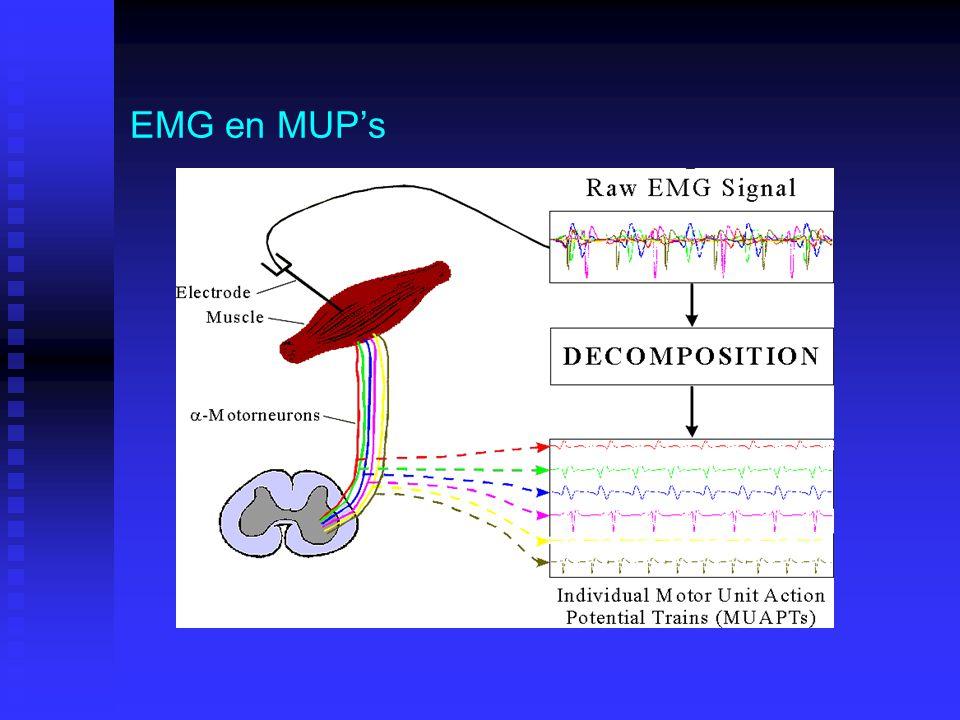 EMG en MUP's