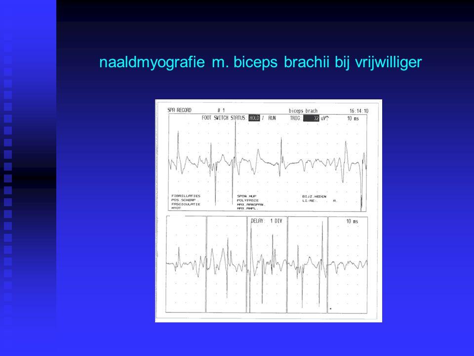 naaldmyografie m. biceps brachii bij vrijwilliger