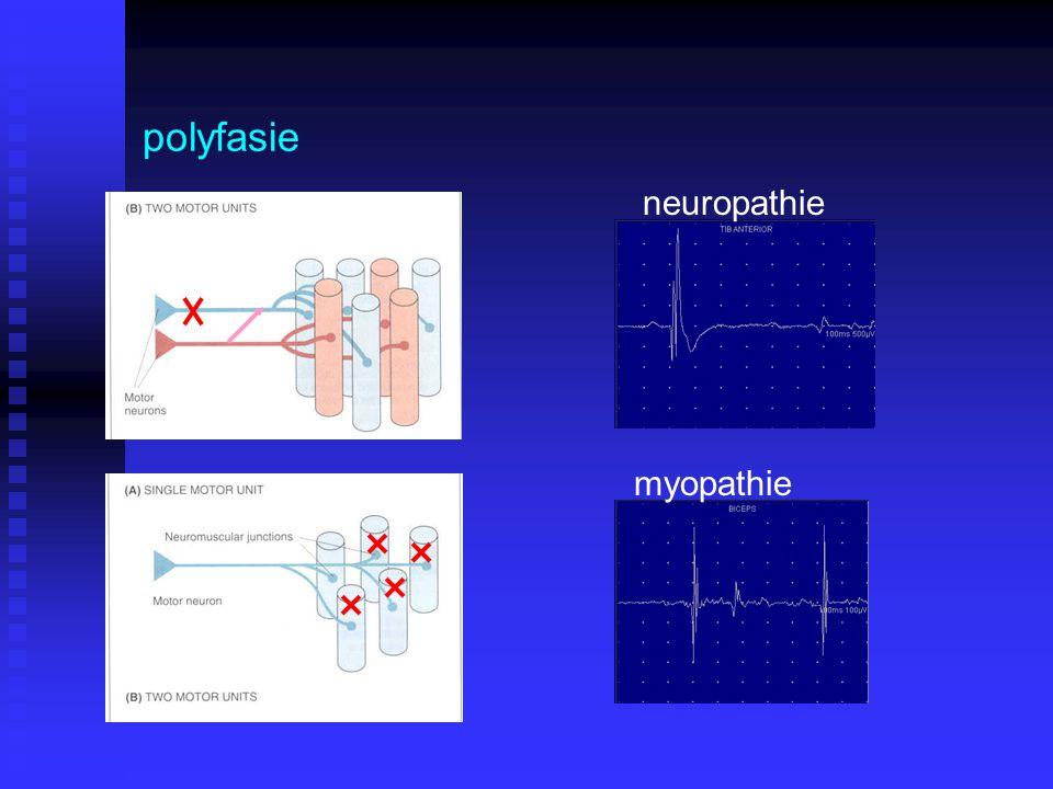 polyfasie neuropathie myopathie