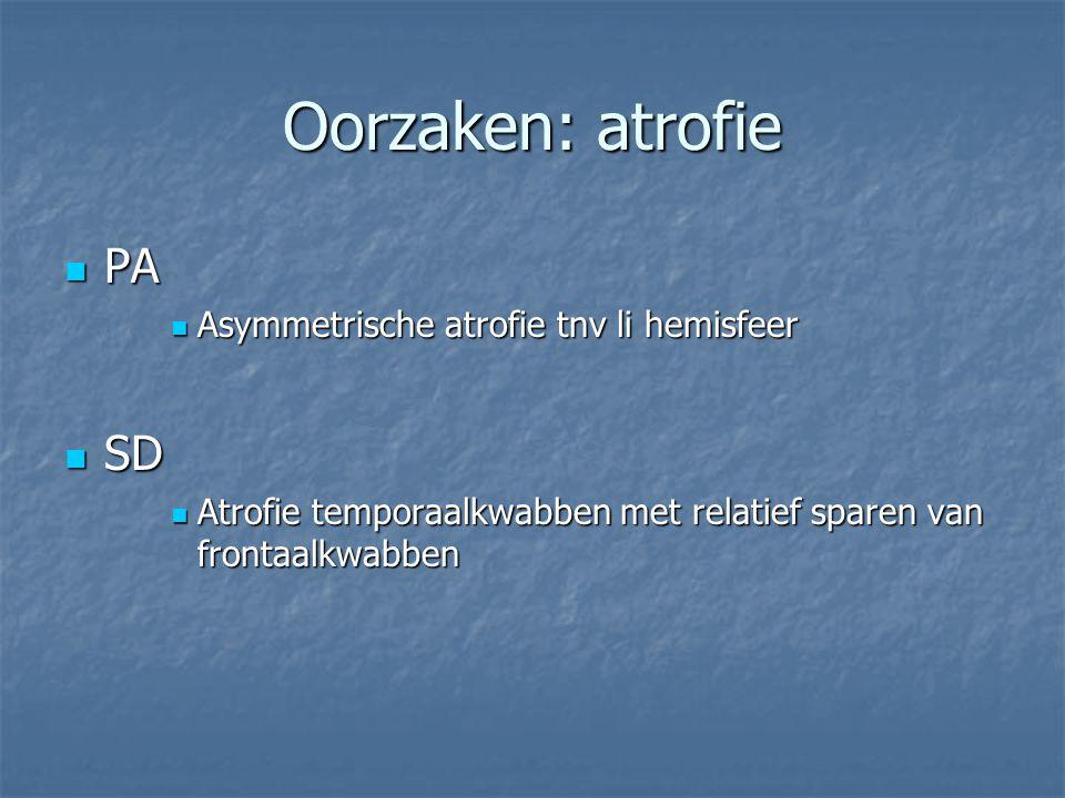 Oorzaken: atrofie PA SD Asymmetrische atrofie tnv li hemisfeer