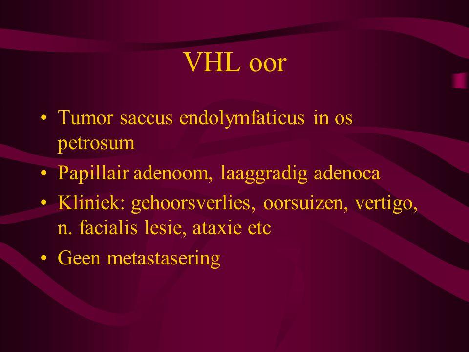 VHL oor Tumor saccus endolymfaticus in os petrosum