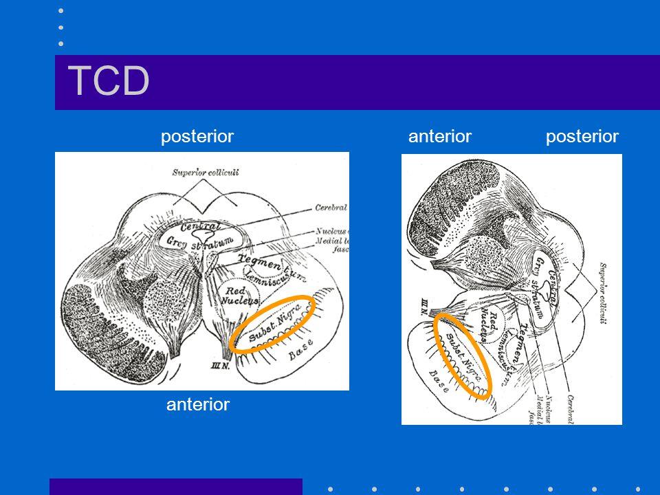 TCD posterior anterior posterior anterior