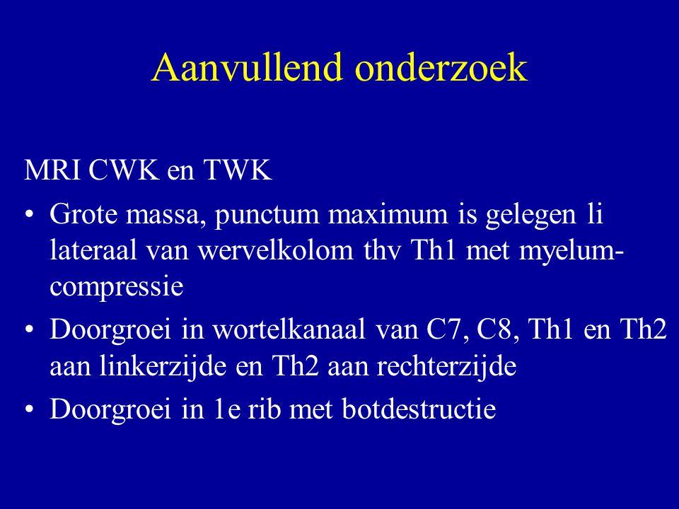 Aanvullend onderzoek MRI CWK en TWK