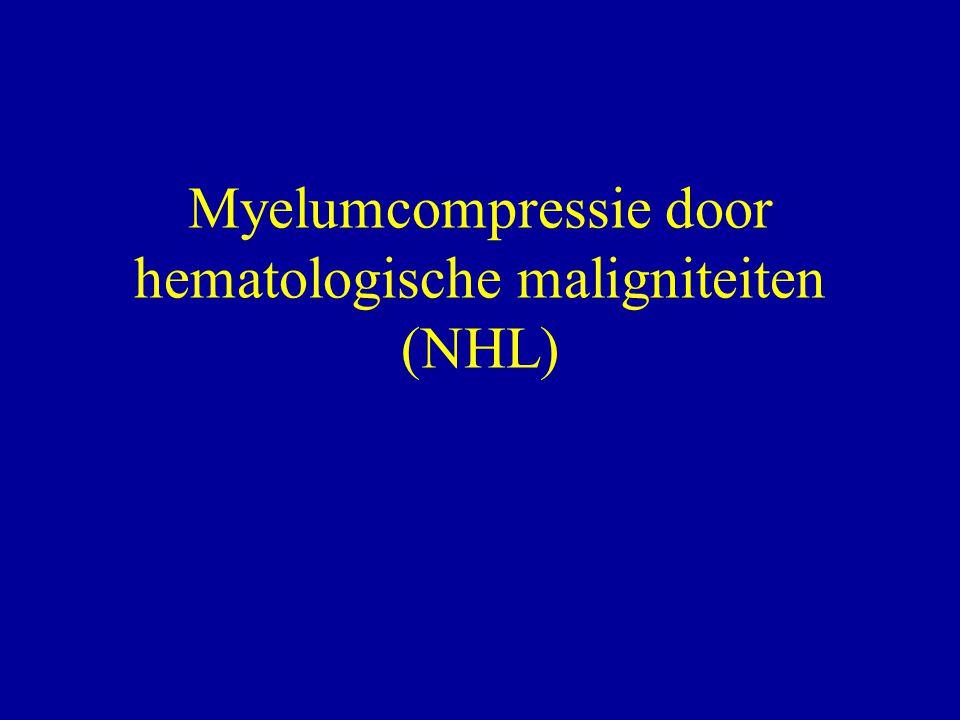 Myelumcompressie door hematologische maligniteiten (NHL)