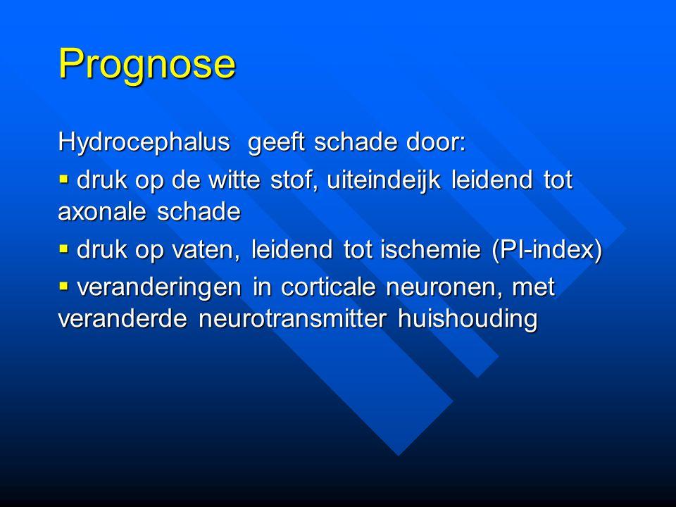 Prognose Hydrocephalus geeft schade door:
