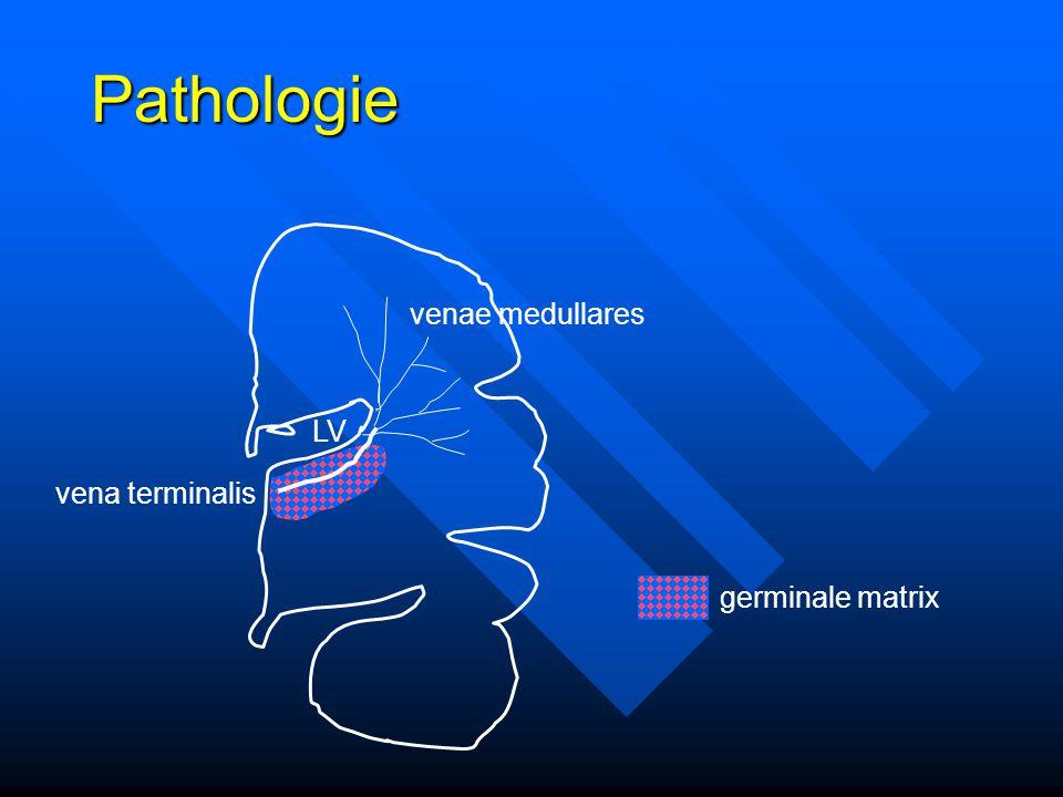 Pathologie venae medullares LV vena terminalis germinale matrix
