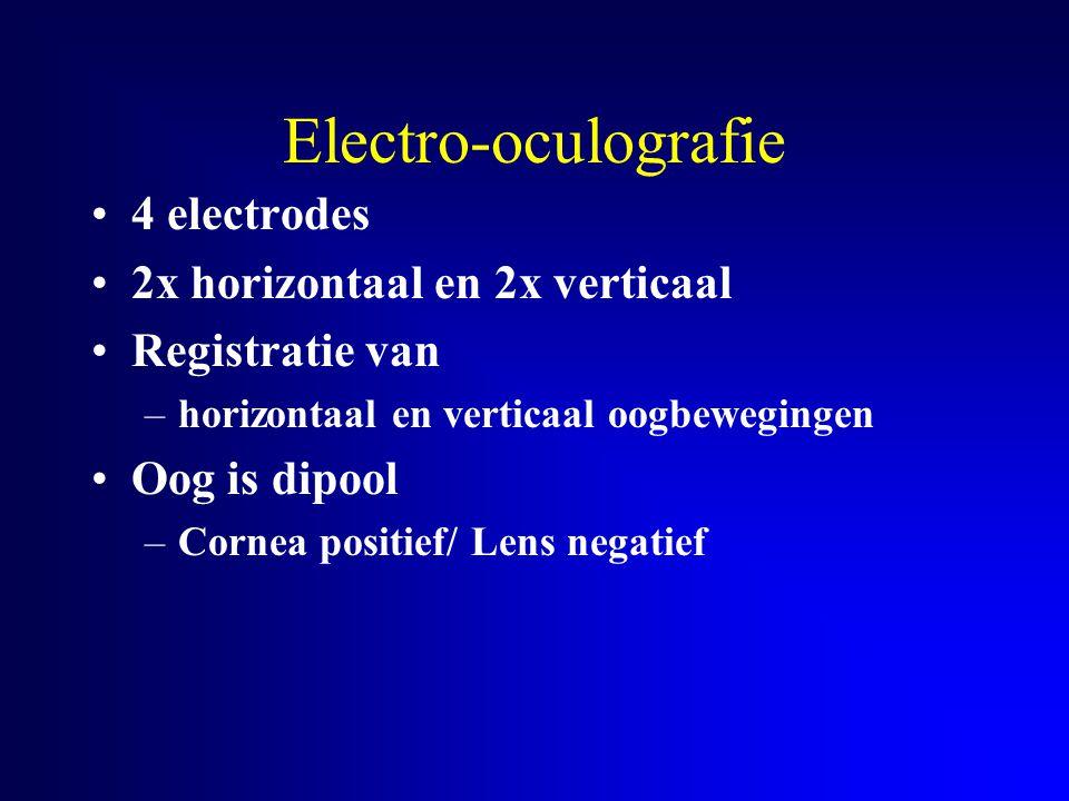 Electro-oculografie 4 electrodes 2x horizontaal en 2x verticaal