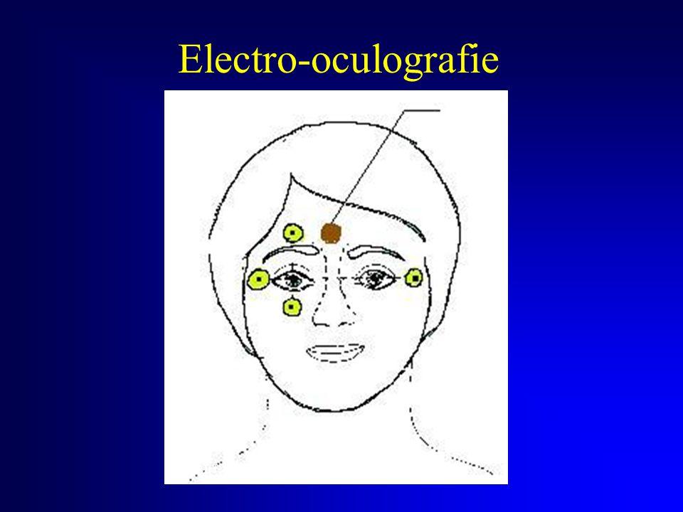 Electro-oculografie Refer- entie