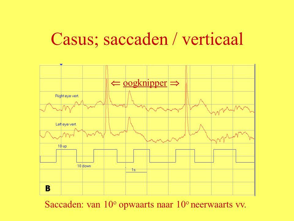 Casus; saccaden / verticaal