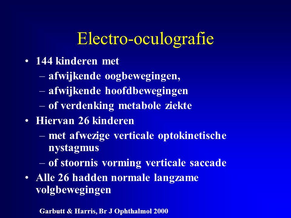 Electro-oculografie 144 kinderen met afwijkende oogbewegingen,