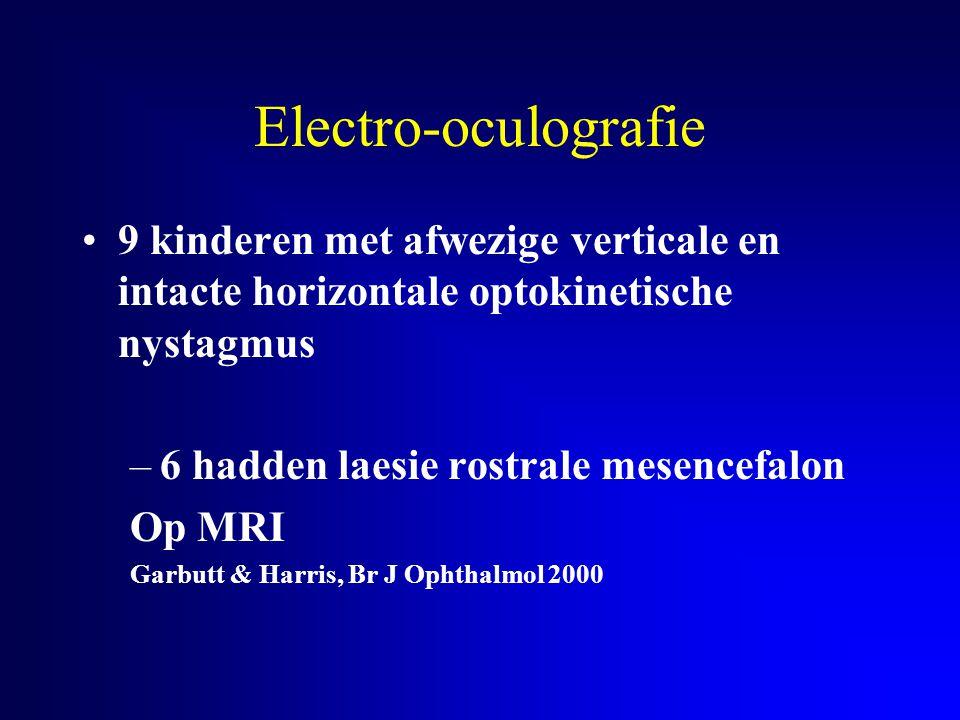 Electro-oculografie 9 kinderen met afwezige verticale en intacte horizontale optokinetische nystagmus.
