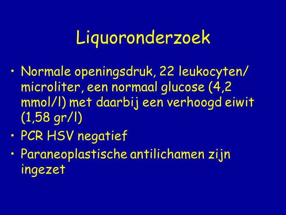 Liquoronderzoek Normale openingsdruk, 22 leukocyten/ microliter, een normaal glucose (4,2 mmol/l) met daarbij een verhoogd eiwit (1,58 gr/l)