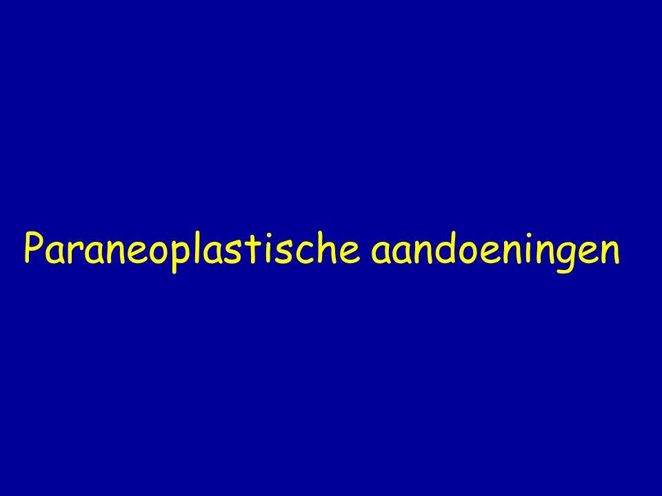 Paraneoplastische aandoeningen