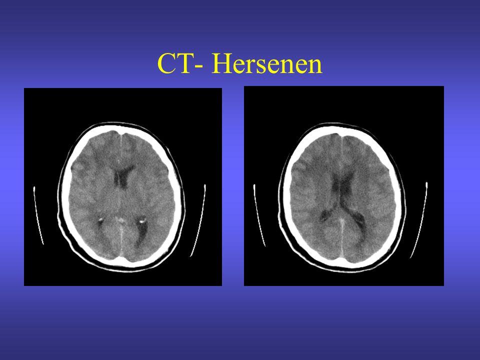 CT- Hersenen
