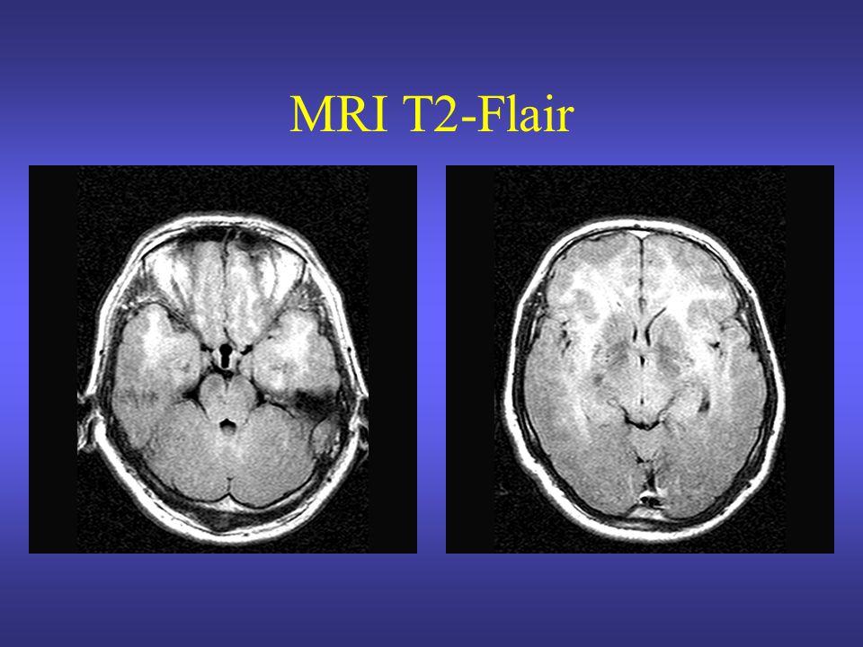MRI T2-Flair Isointens op T2 gewogen opnamen