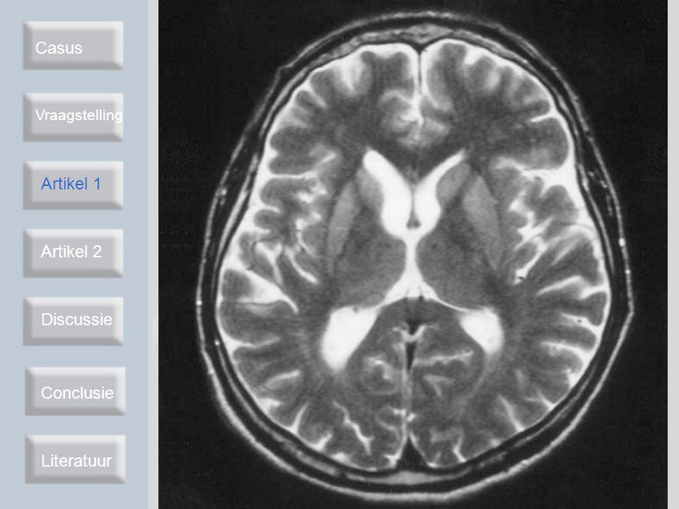 T2-gewogen MRI bij CJD Casus Artikel 1 Artikel 2 Discussie Conclusie