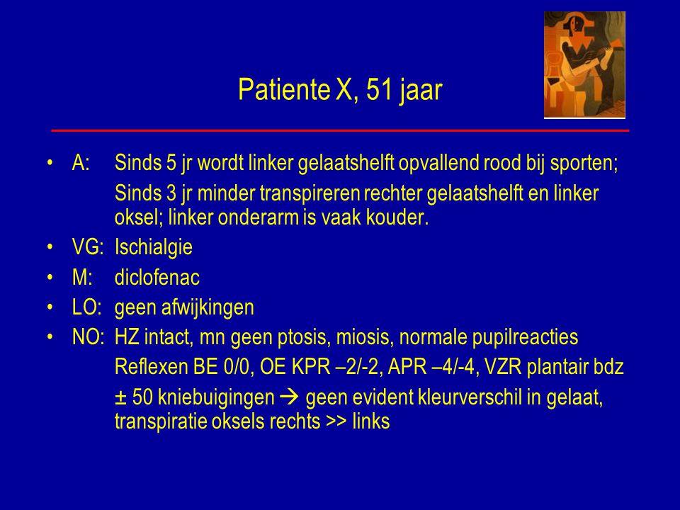 Patiente X, 51 jaar A: Sinds 5 jr wordt linker gelaatshelft opvallend rood bij sporten;