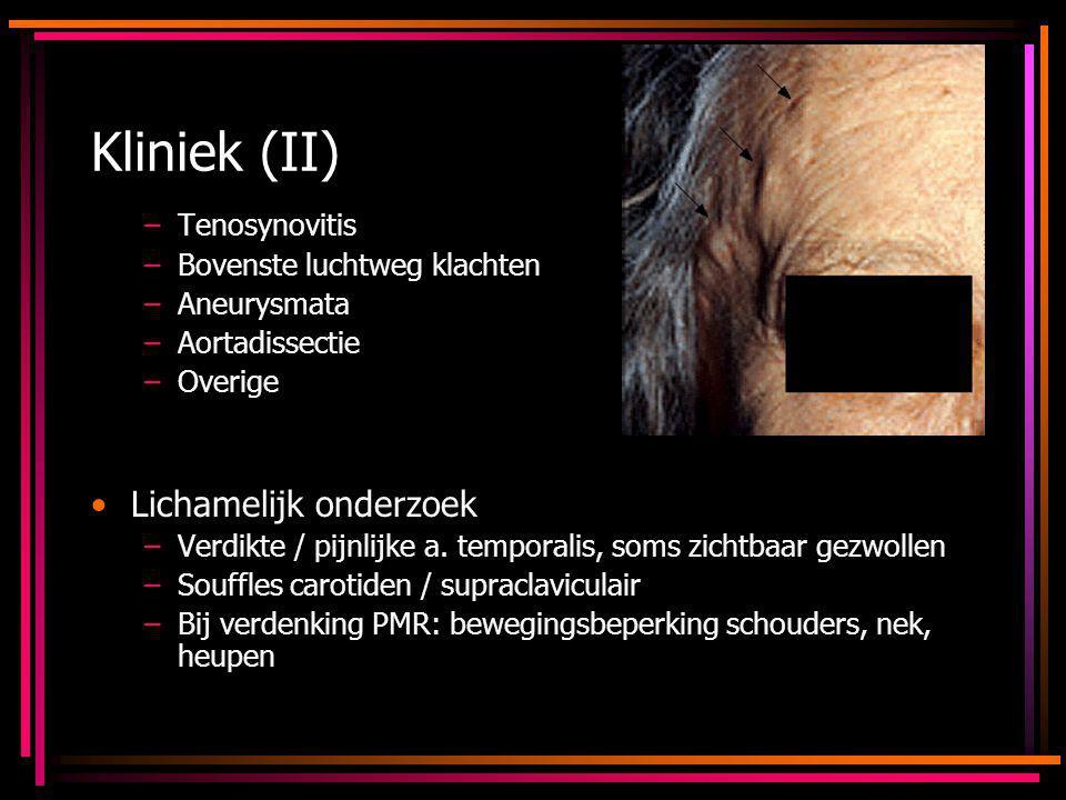 Kliniek (II) Lichamelijk onderzoek Tenosynovitis