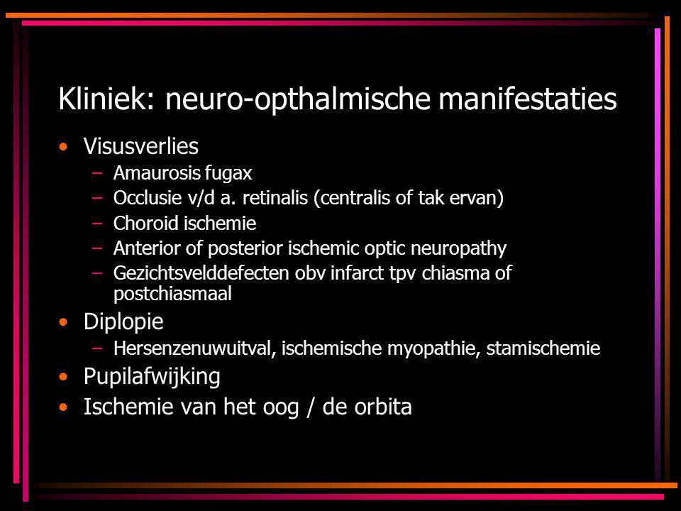 Kliniek: neuro-opthalmische manifestaties