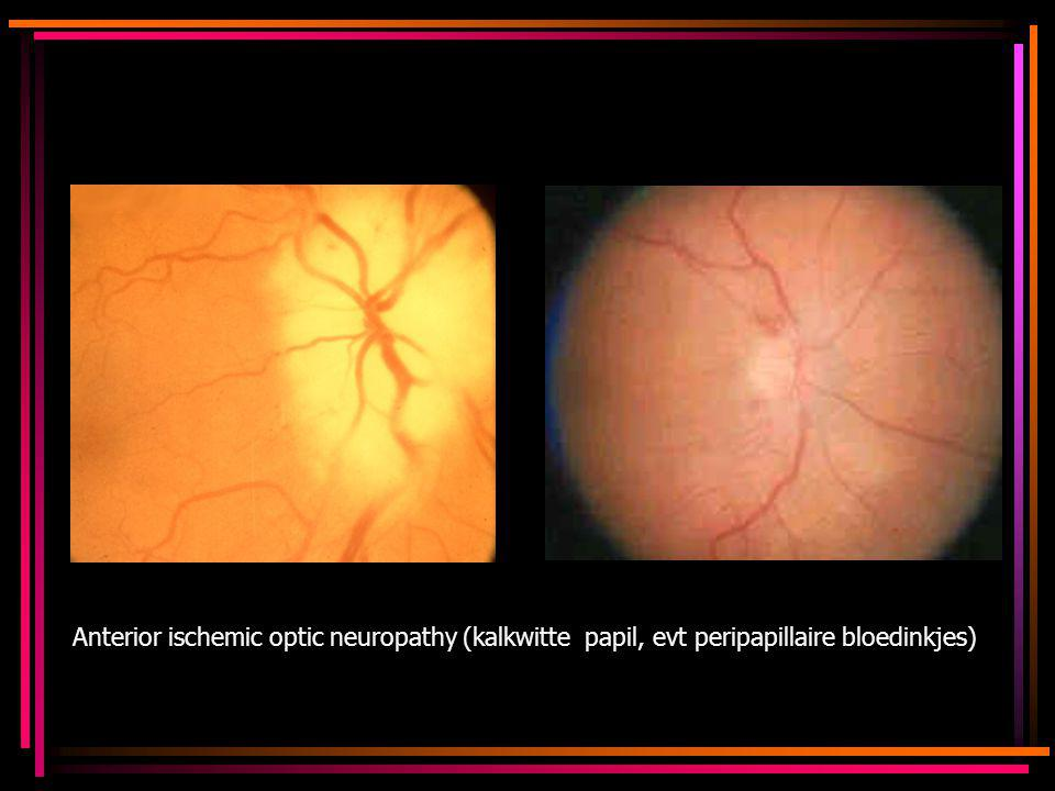 Anterior ischemic optic neuropathy (kalkwitte papil, evt peripapillaire bloedinkjes)