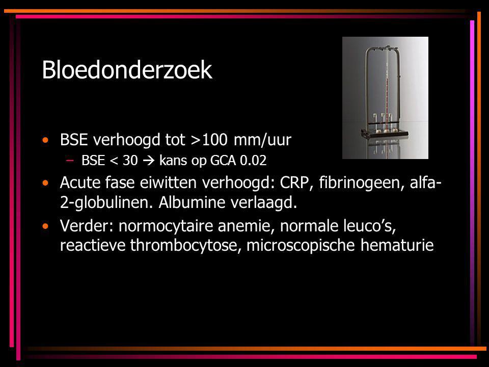 Bloedonderzoek BSE verhoogd tot >100 mm/uur