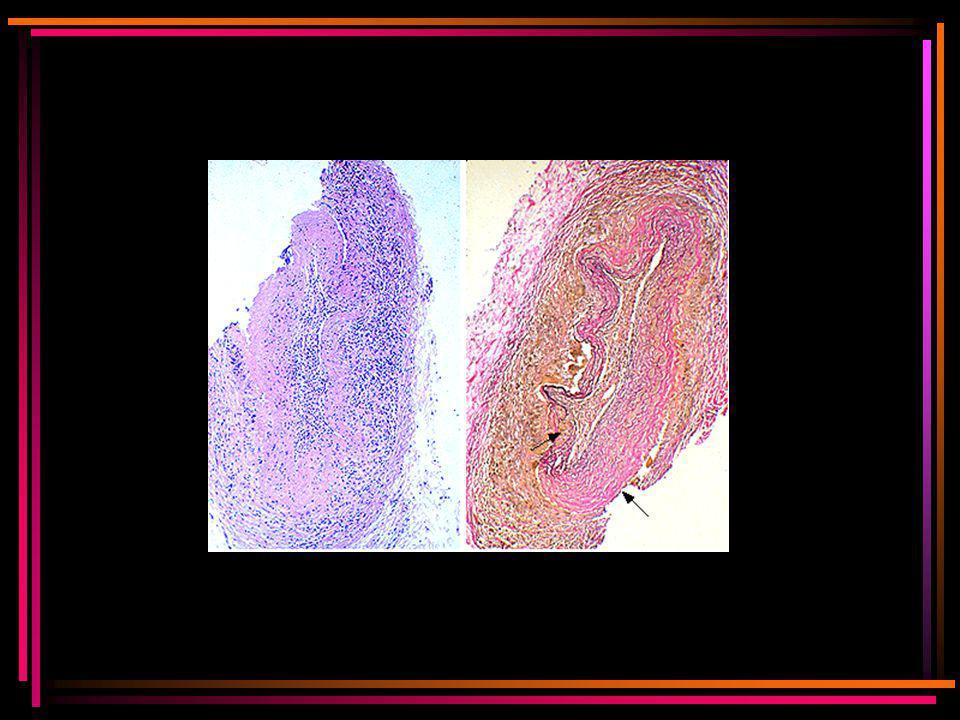 Blauwe kleuring: veel granulocyten en lymfocyten in de adventitia en de mediale vaatwand